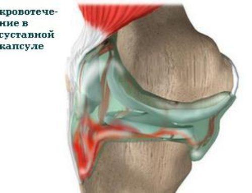 Гемартроз: насколько опасны кровоизлияния в сустав
