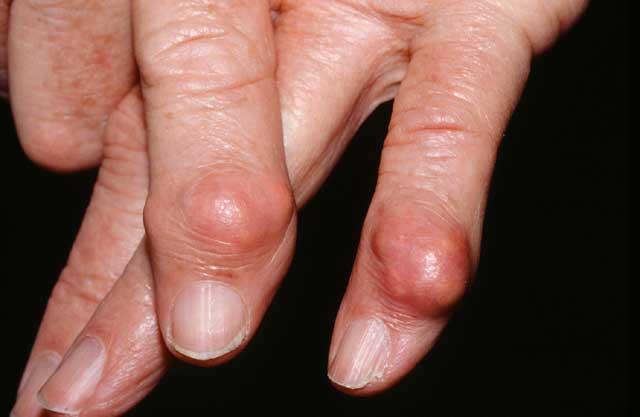 Сильная Боль В Суставах Пальцев Ног