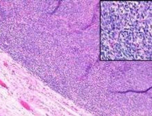 Синовиальная саркома – онкологическое заболевание суставов
