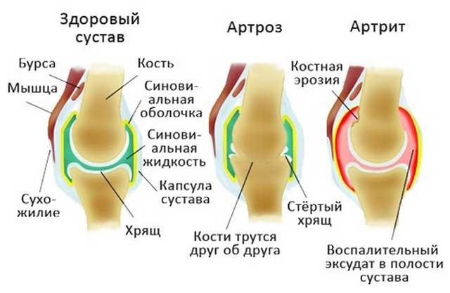 чем отличаются артроз и артрит