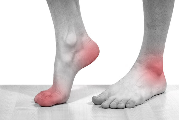подагрический артроз стопы симптомы