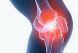 лечение коленного артрита