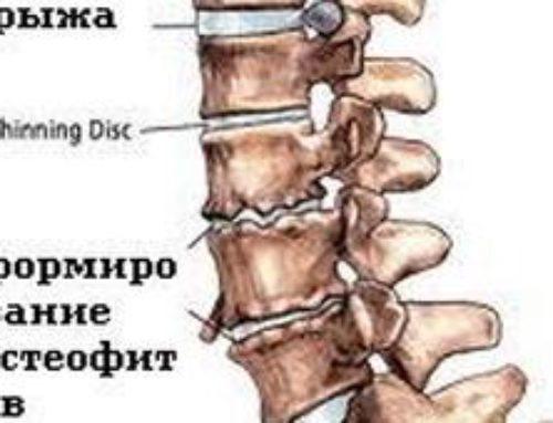 Болезнь Легг-Кальве-Пертеса: изменения в  дисках позвоночника