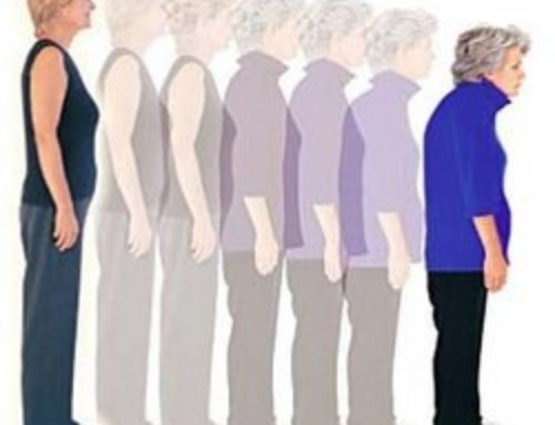 Остеопороз — заболевание 21 века