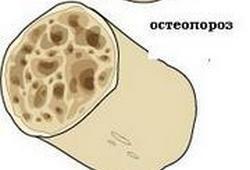 плотность кости