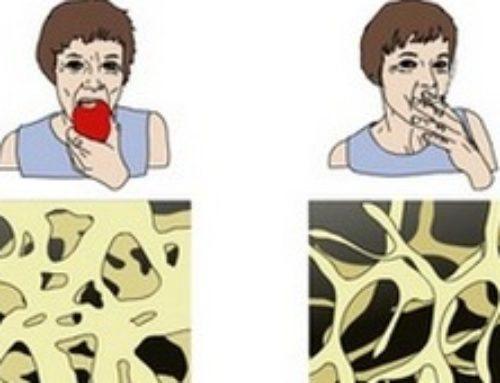 Остеопороз – что это такое: почему перестает обновляться костная ткань