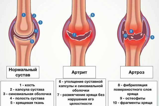 изменения в суставах при остеоартрозе