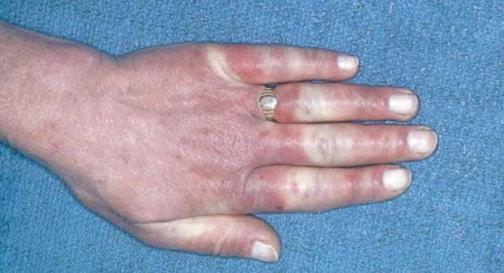 клиническая картина синдрома рейно