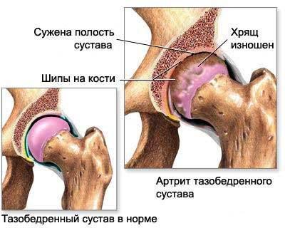 Изображение - Боль в тазобедренном суставе обследование sustav-tazobedr