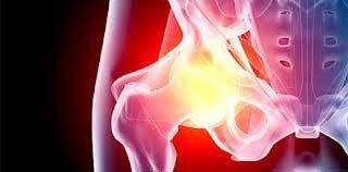 Изображение - Боль в тазобедренном суставе обследование travmy-tazob-sustava