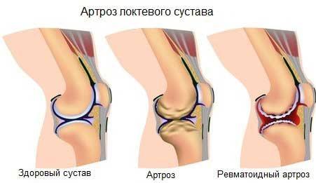Как лечить травматический артроз локтевого сустава отвар из лавровых листьев для суставов