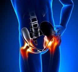 Боль в тазобедренном суставе: причины, комплексное лечение