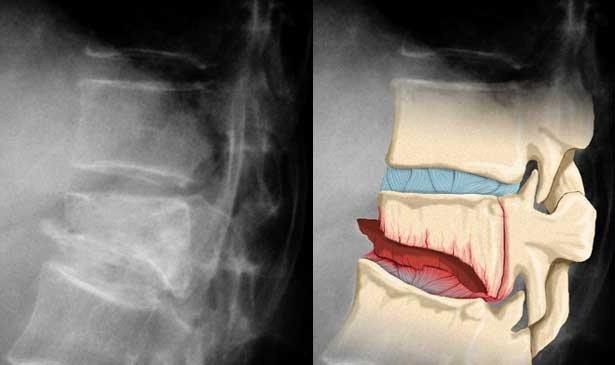 ренгенограмма компрессионного перелома