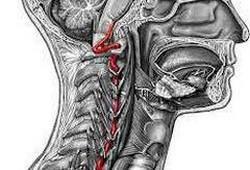 фото позвоночной артерии