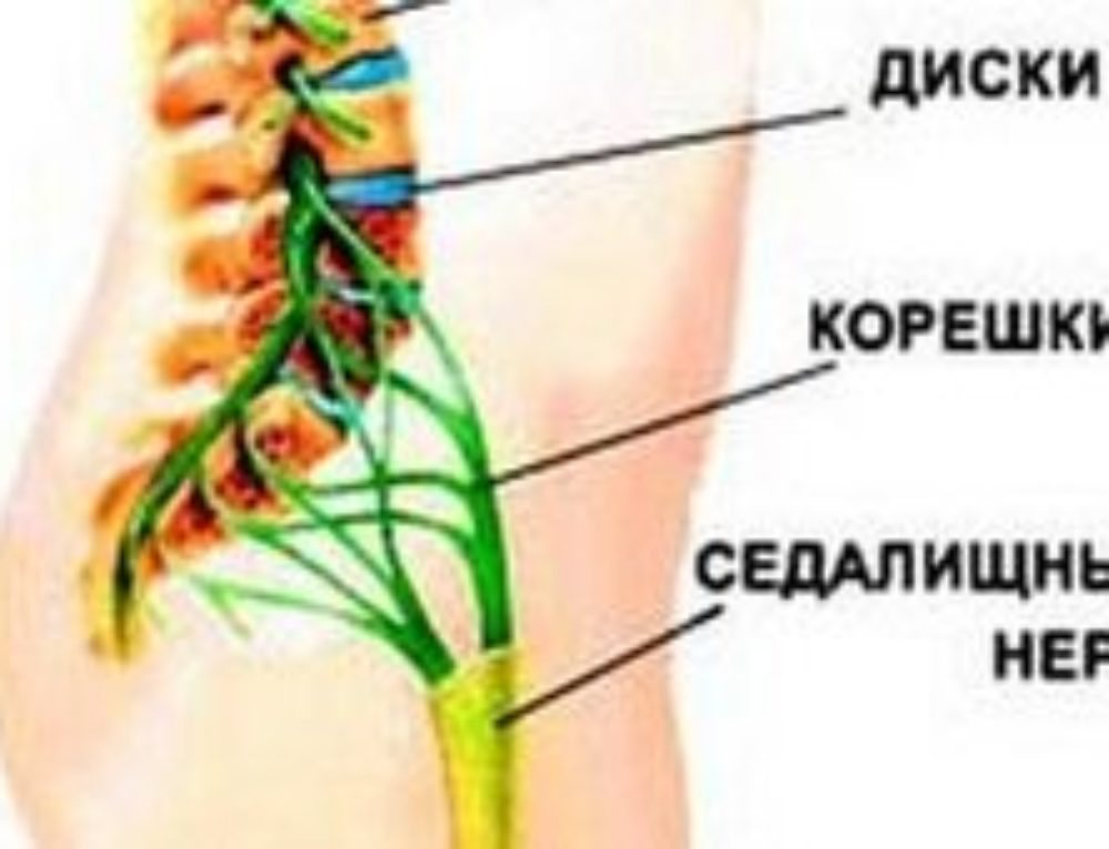 Седалищный нерв остеопатия