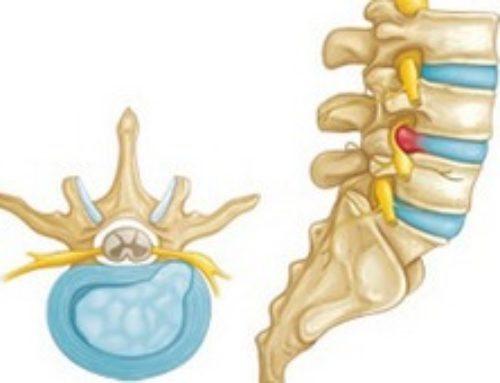 Методы лечения межпозвоночной грыжи поясничного отдела позвоночника