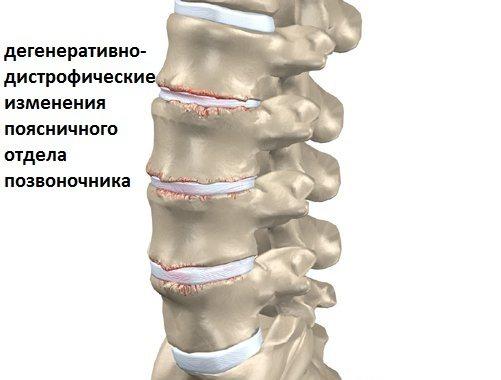 Дистрофические процессы в суставах сильные боли в коленном суставе лечение