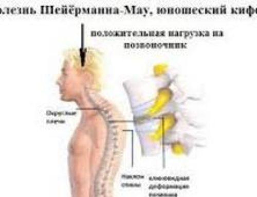 Болезнь Шейермана-Мау: симптомы, диагностика, лечение
