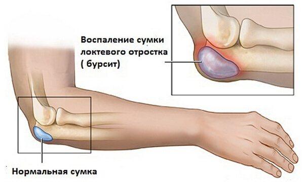 Изображение - Левомеколь при бурсите локтевого сустава bursit-loktevogo-sustava-simptomyi-i-lechenie5