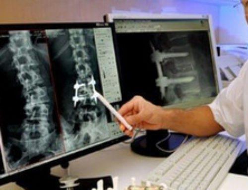 Что лечит хирург-ортопед? Диагностика и подбор лечения заболеваниям опорно-двигательной системы