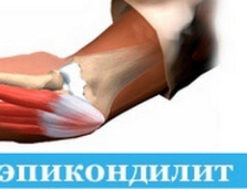 Эпикондилит локтевого сустава: симптомы и лечение. Как вовремя распознать болезнь