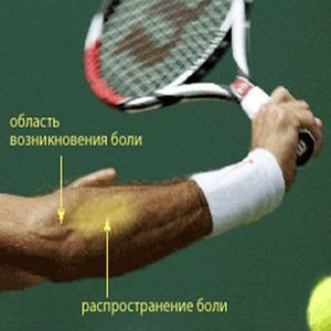 Изображение - Наружный эпикондилит локтевого сустава мкб 10 epikondilit-loktevogo-sustava-simptomyi-i-lechenie2