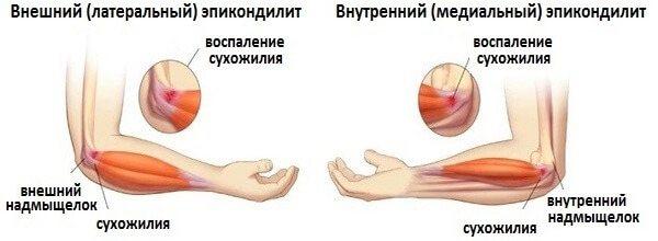 Изображение - Наружный эпикондилит локтевого сустава мкб 10 epikondilit-loktevogo-sustava-simptomyi-i-lechenie3