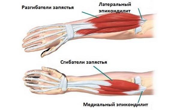 Изображение - Наружный эпикондилит локтевого сустава мкб 10 epikondilit-loktevogo-sustava-simptomyi-i-lechenie4