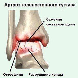 Растворение отложения солей в суставах от чего болит колено и под коленом и как лечить