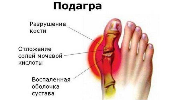 Как растворить отложение солей в суставах остеоартроз периферических суставов