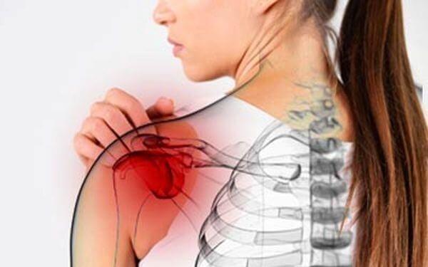 Что такое периартрит плечелопаточный и как его лечить