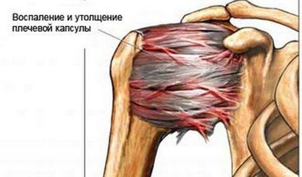 Операция при периартрите плечевого сустава как лечить хруст в суставах народными средствами