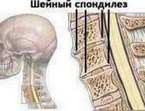 Почему спондилез шейного отдела позвоночника легче предотвратить, чем лечить