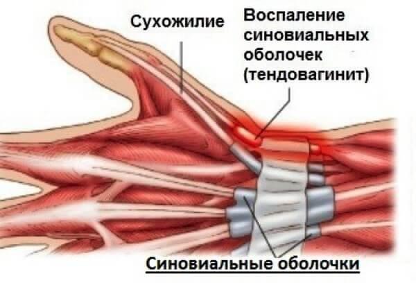 Воспаление связок лучезапястного сустава лечение боли в пояснице после эндопротезирования тазобедренного сустава