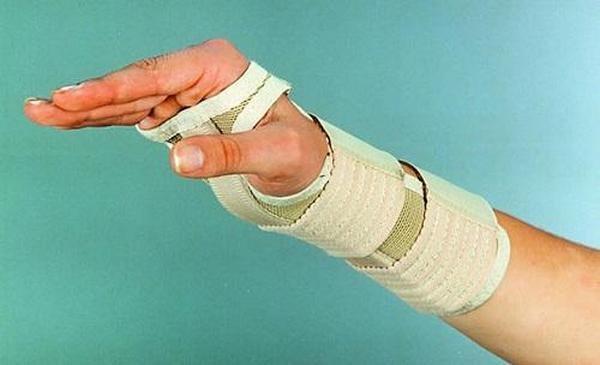 Тендовагинит лучезапястного сустава фото физическая реабилитация при травмах коленного сустава