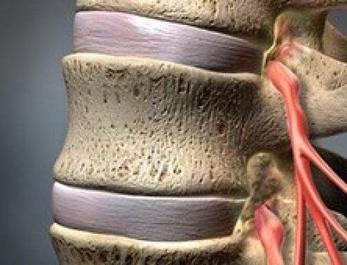 Стеноз позвоночного канала: что происходит, классификации и диагностика