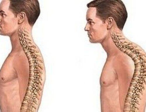Горб на спине — это не просто дефект, а опасно для здоровья