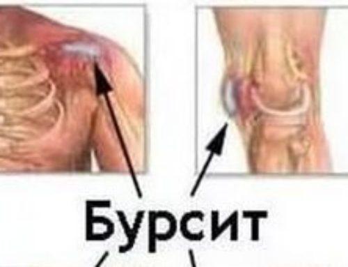 Бурсит. Основные подходы к диагностике и лечению