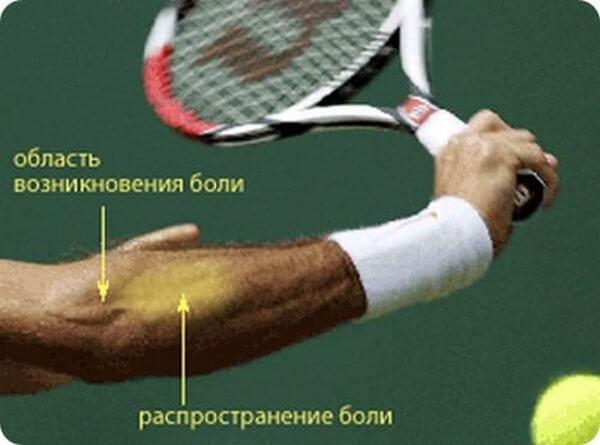 нагрузки на локоть при занятиях теннисом