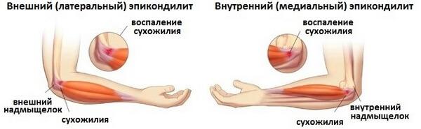два типа заболевания локтя теннисиста