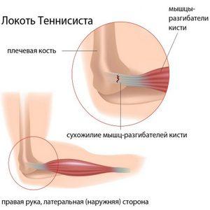 как диагностируют воспаление локтевого сустава