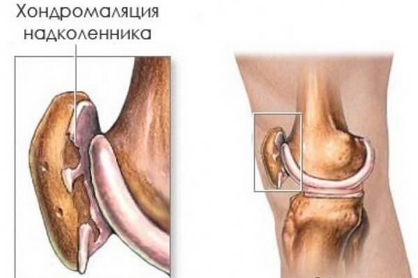 Хондромаляция суставов противопоказания болят суставы коленях