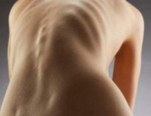 Кифосколиоз грудного отдела позвоночника: насколько опасно данное искривление