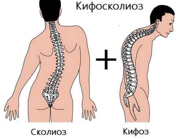 Лечение заболевания кифосколиоз грудного отдела позвоночника. Что такое кифосколиоз и как его лечить Причины развития заболевания