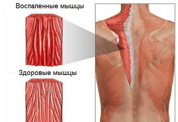 как выглядят воспаленные мышцы шеи