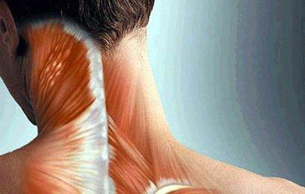 болезненность мышц шеи