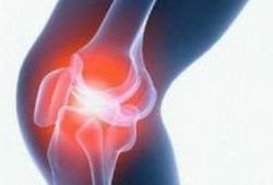 Суставная мышка в коленном суставе американские препараты для суставов