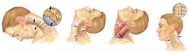 особенности хлыстовой травмы шеи