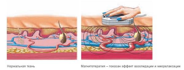 взаимодействие с организмом магнитного поля