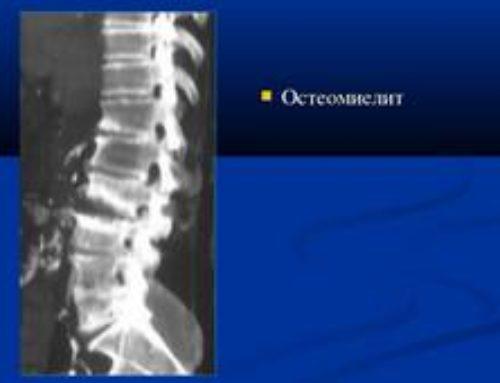 Остеомиелит позвоночника: симптомы, диагностика, лечение и прогноз